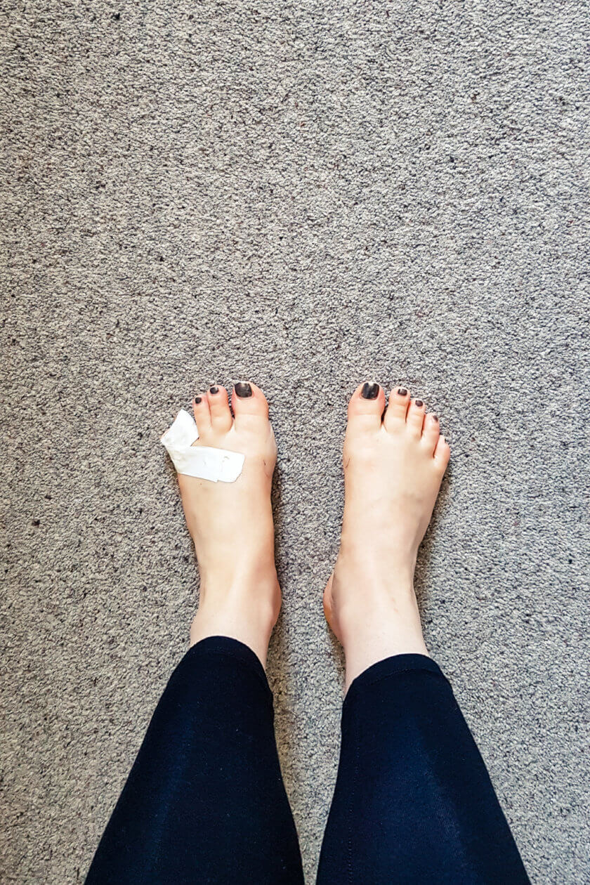 My feet after 4 days of hiking in Scotland.